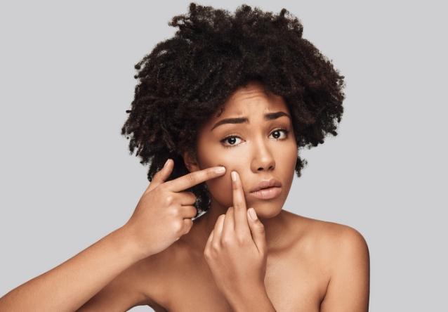Jak usunąć przebarwienia na skórze