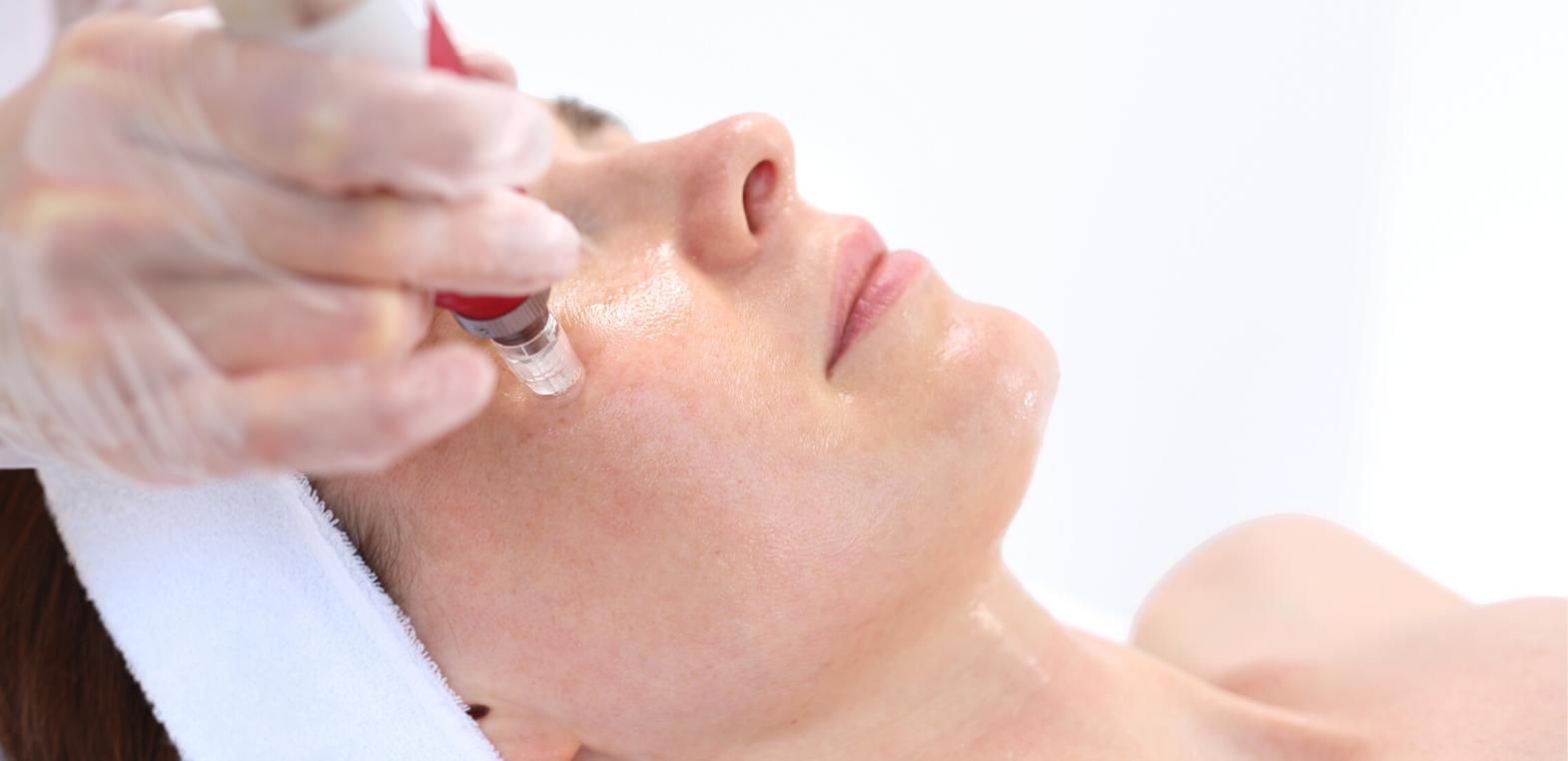 Co daje mikronakłuwanie skóry?