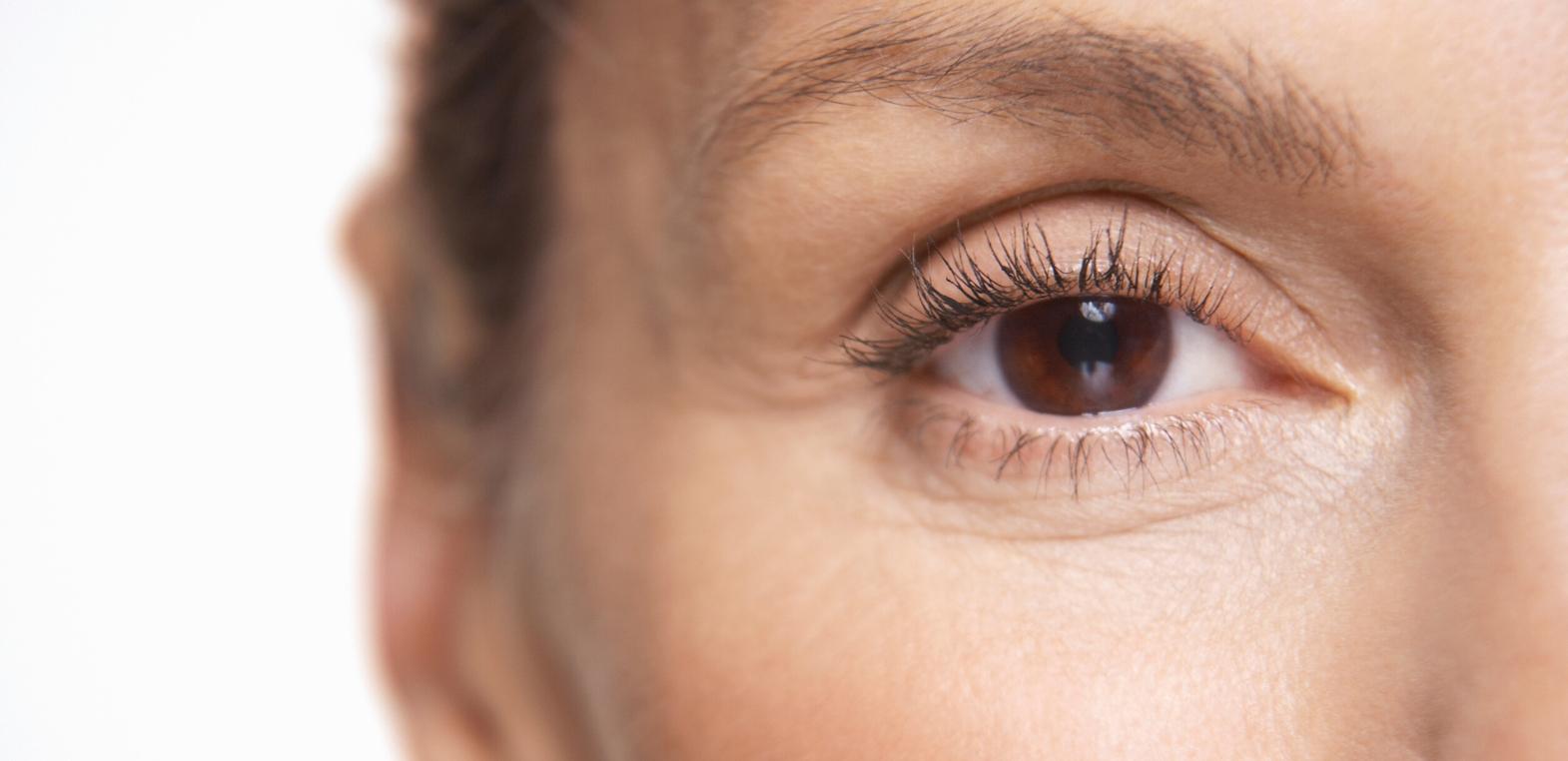 Zmarszczki wokół oczu. Co robić aby maksymalnie opóźnić ich pojawienie się na twarzy