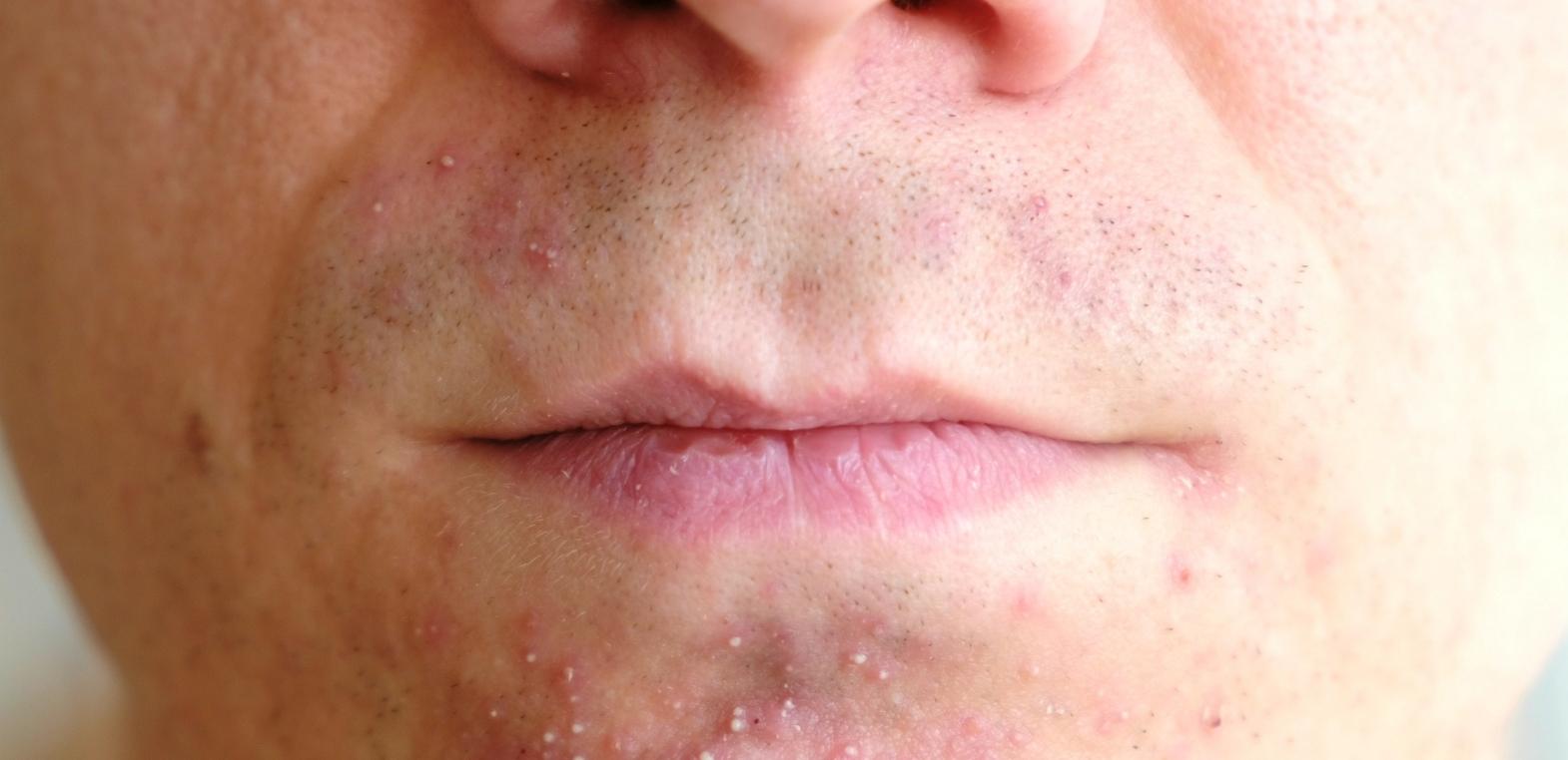 Zapalenie okołoustne – Dermatitis Perioralis